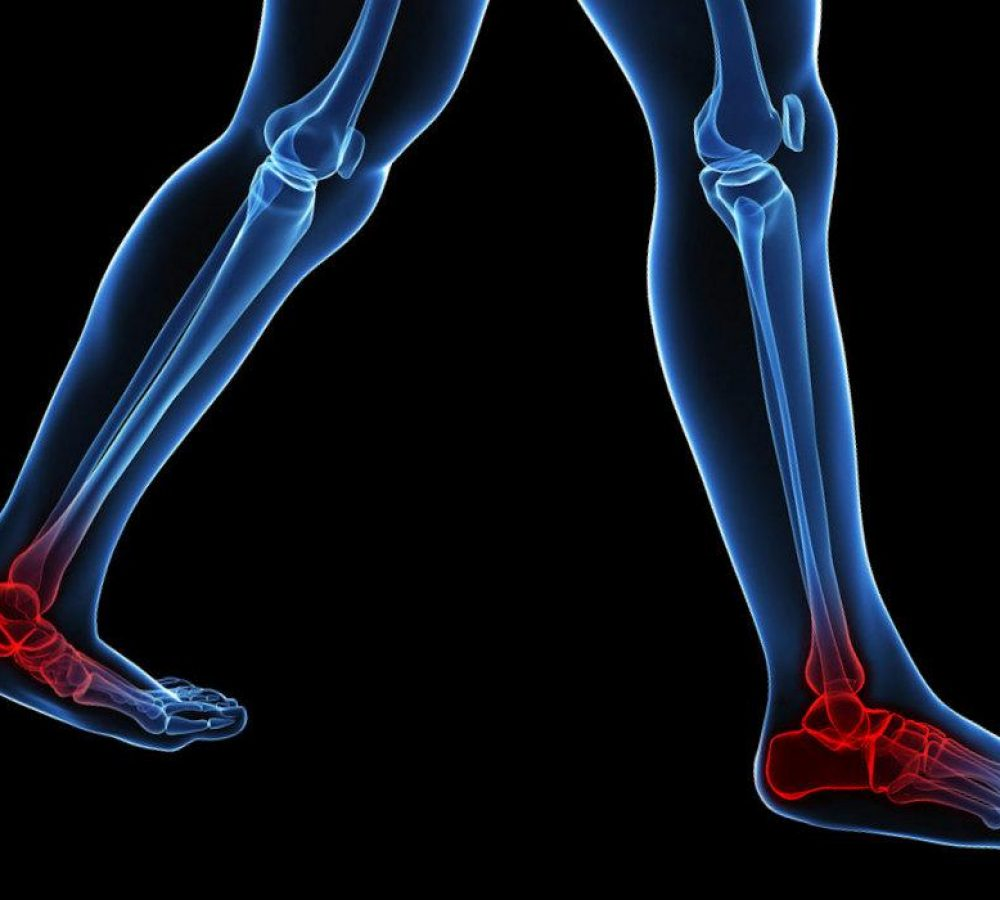 musculoskeletal-foot-problems-22584160_m